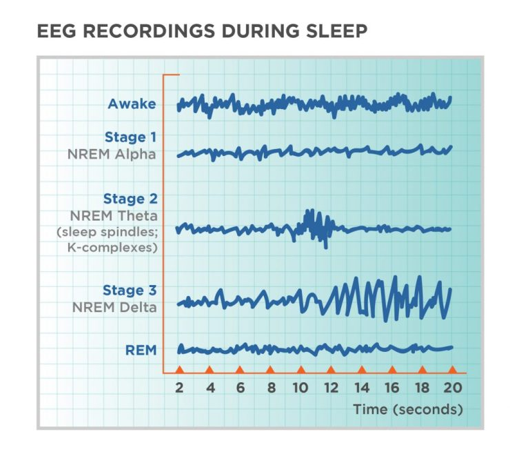 EEG-Recordings-During-Sleep-1024x929